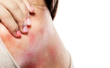 dermatite 436x272 - Você sabe o que é Dermatite Atópica?
