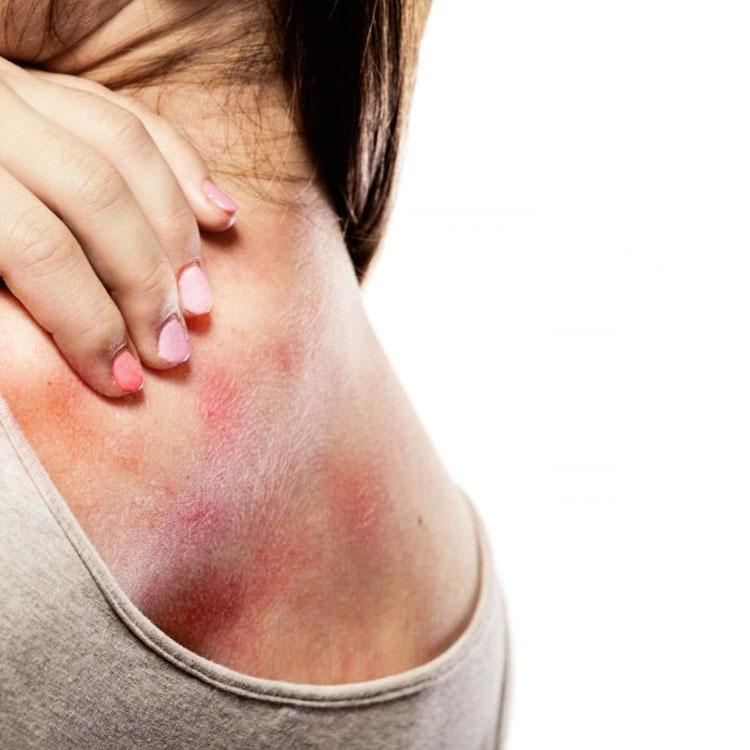 dermatite - Dermatite Atópica