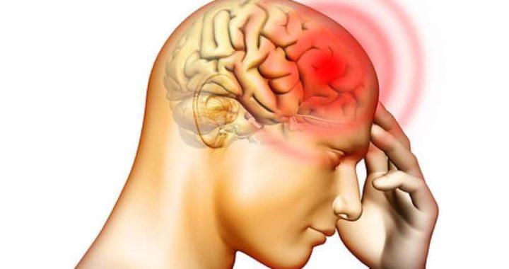 headache 720x380 - Meningite meningocócica: O que é