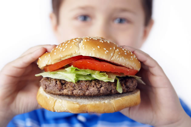 """obesidade infantil - A obesidade infantil antecipa doenças """"de adultos"""""""