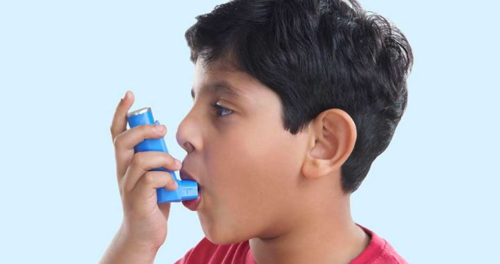 e3b285 fd3963f0148c4da29fd4a6e918833eb6 mv2 720x380 - A asma não tem cura, mas você pode ajudar a prevenir os sintomas.