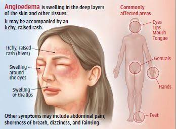 images 1 - O angioedema como manifestação de urticária